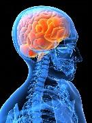 脳梗塞 脳血管障害